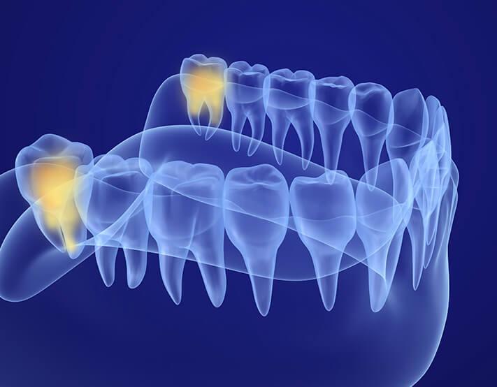 wisdom teeth image